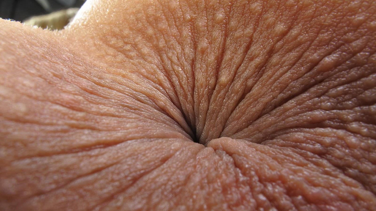 gipertrofirovannogo-analnogo-sosochka