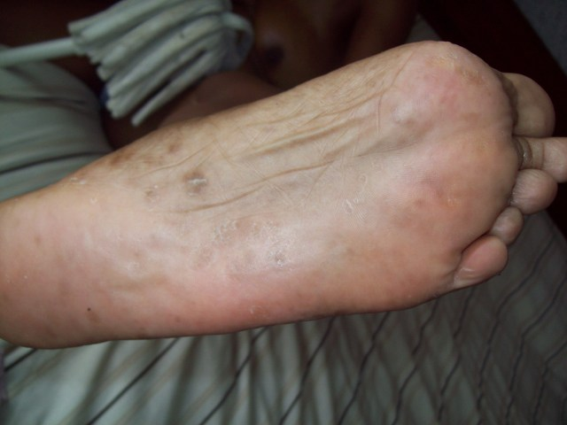 cum on feet pic experts foot dermatology