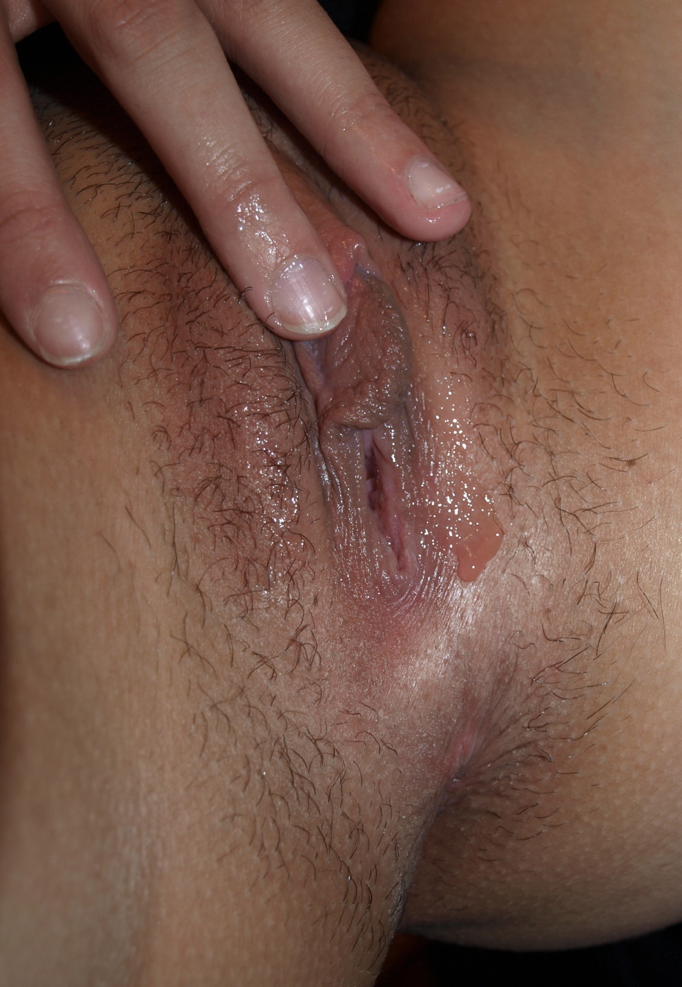 pea sized lump near clit