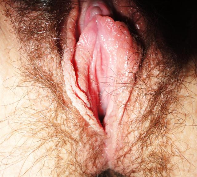 close up of pussy pictures hairy close vagina walls crater