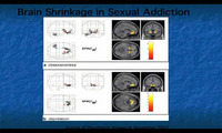 porn addiction brain shrinkage sexual addiction any evidence porn addicted