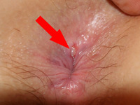 anal pics anal fissure fissures causes treatment