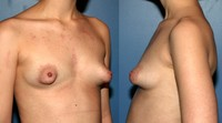 huge nipples light tuberous fitness comments progress experience three years fit