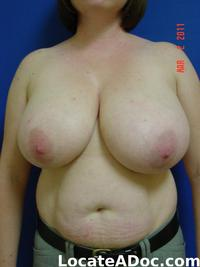 images of huge breast pictures gallery breast reduction surgery before fullsize