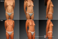 perky breasts pics photos mommymakeover redo tyqa weight loss after tah bso surgeons lake charles