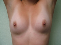small breasts images breast augmentation bapix