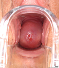 vagina pictures closeup photos rachel cervix