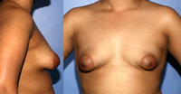 very small breasts photos dark tuberous category breast lipostructure